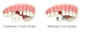 Single Tooth - 3 tooth bridge & Maryland type bridge
