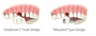 3 tooth bridge & Maryland type bridge