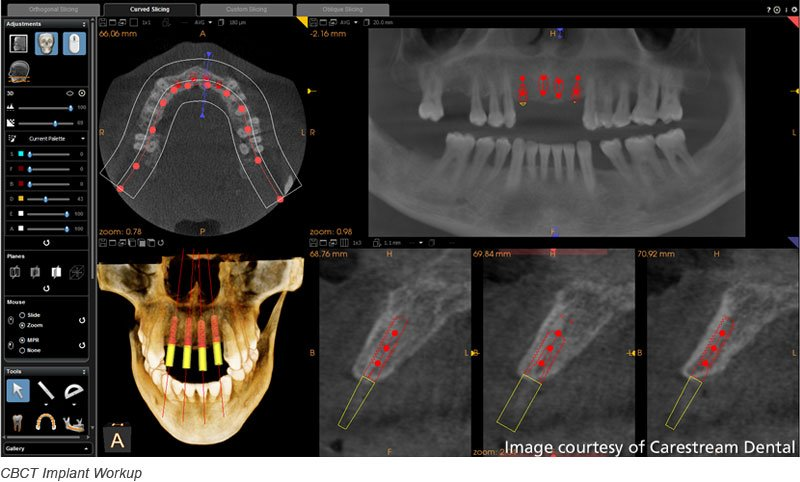 cbct implant workup