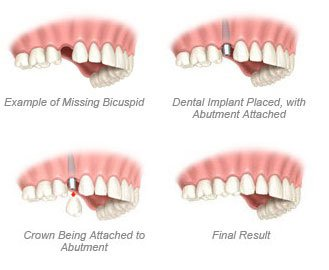 Single Tooth - Dental Implant Process