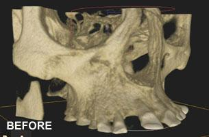 full arch reconstruction before cbct
