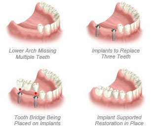 non-removable replacement implants