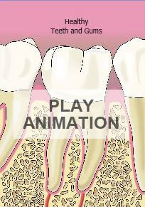 periodontal disease animation