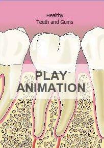 periodontal disease animation