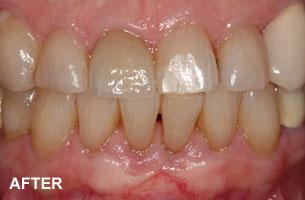 Cosmetic Dentistry - recession after