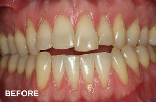 Cosmetic Dentistry - recession before