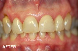 single tooth implant after photo