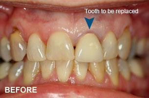 single tooth implant before photo