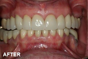 tooth elongation after