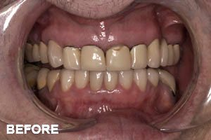 tooth elongation before