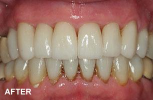 Cosmetic Dentistry - tooth shortening after