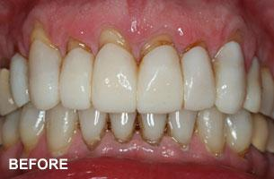 Cosmetic Dentistry - tooth shortening before