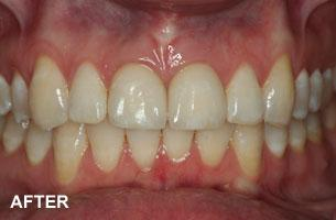 two front teeth after photo