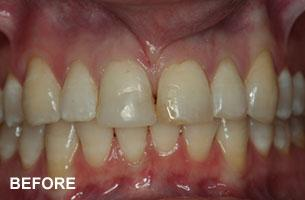 two front teeth before photo